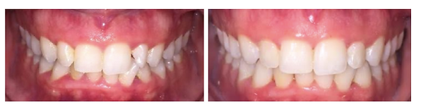 Taunton Invisalign Before After