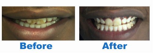 Taunton Fluorosis Treatment Before After