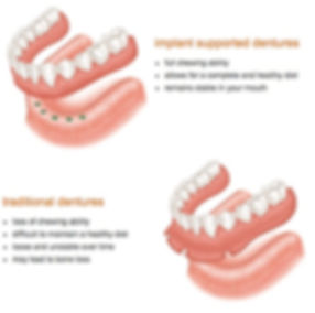 Conventional vs. Implant Overdentures