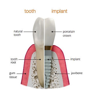 Dental Implant vs. natural tooth