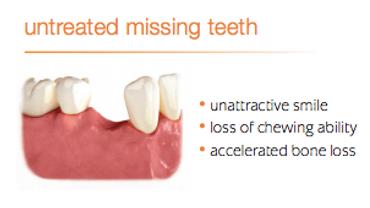 Untreated Missing teeth
