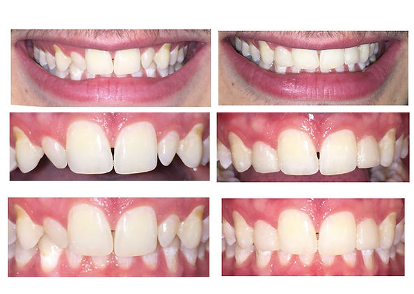 Cosmetic Dentistry - Lateral Incisor Composite Veneers