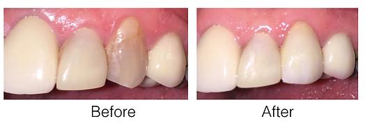 Dental e.max veneer