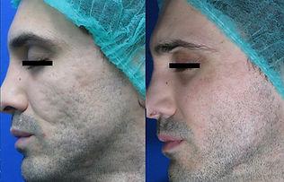 Acne scars B&A_Courtesy of Prof. G.Canna