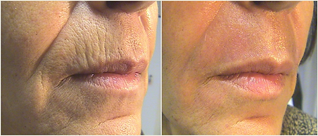 Tetra B&A Lip lines courtesy of Giovanni