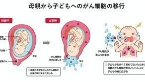(子宮頸癌、肺癌)分娩時帶有癌細胞的羊水造成新生兒罹癌