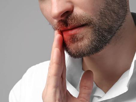 Abril: Mês de conscientização do câncer de boca