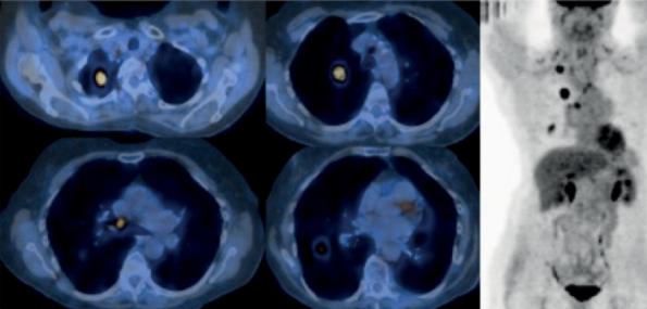 Imagens computadorizadas que mostram um exame PET