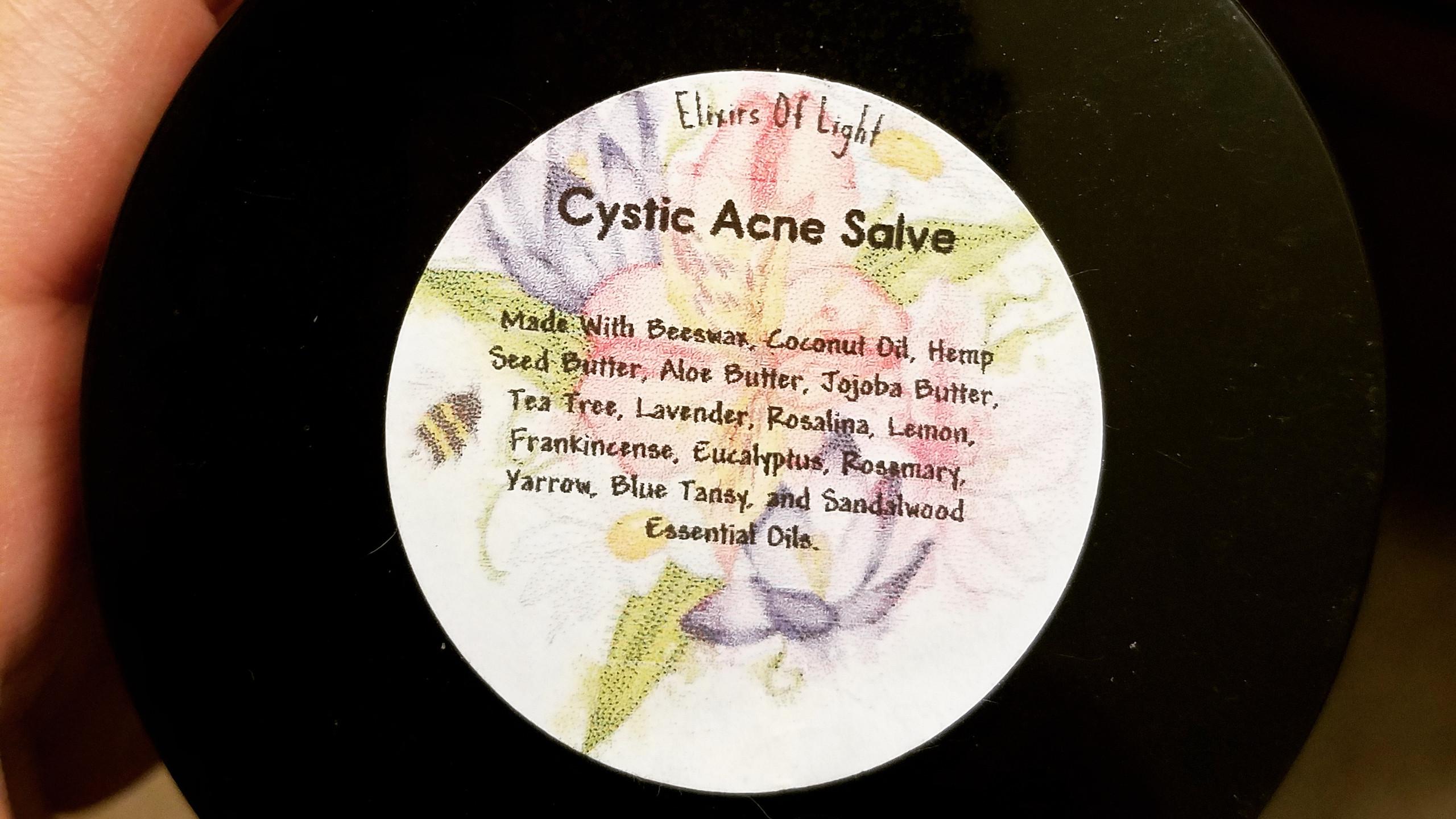 Cystic Acne Salve