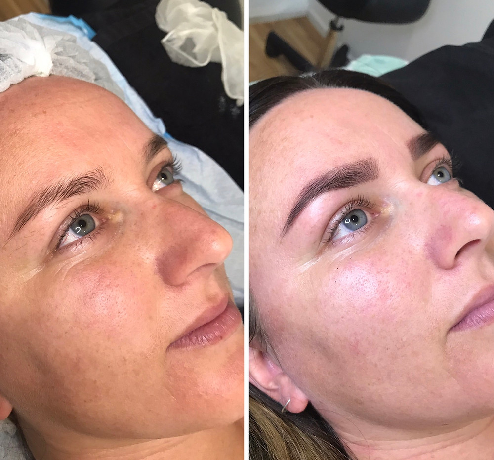 Ana Below, Left pic is before Microneedling, Right is one week post (with Henna brows added)
