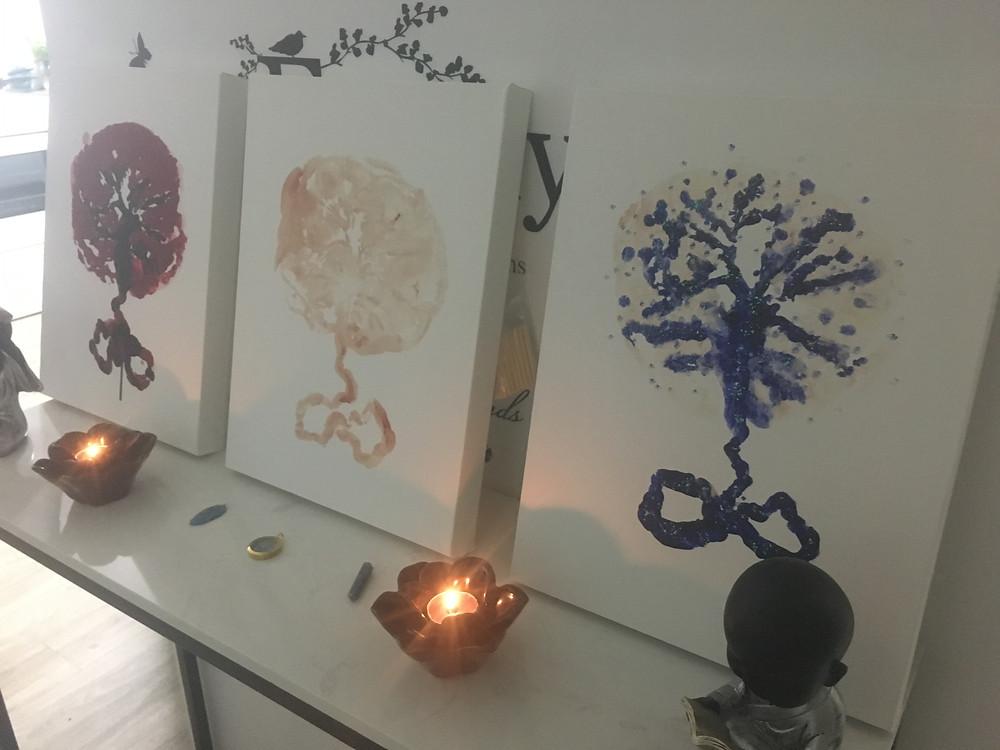 Placenta Prints, Canvas Art