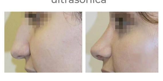 antes-despues-rinoplastia-barnamedik 3.j