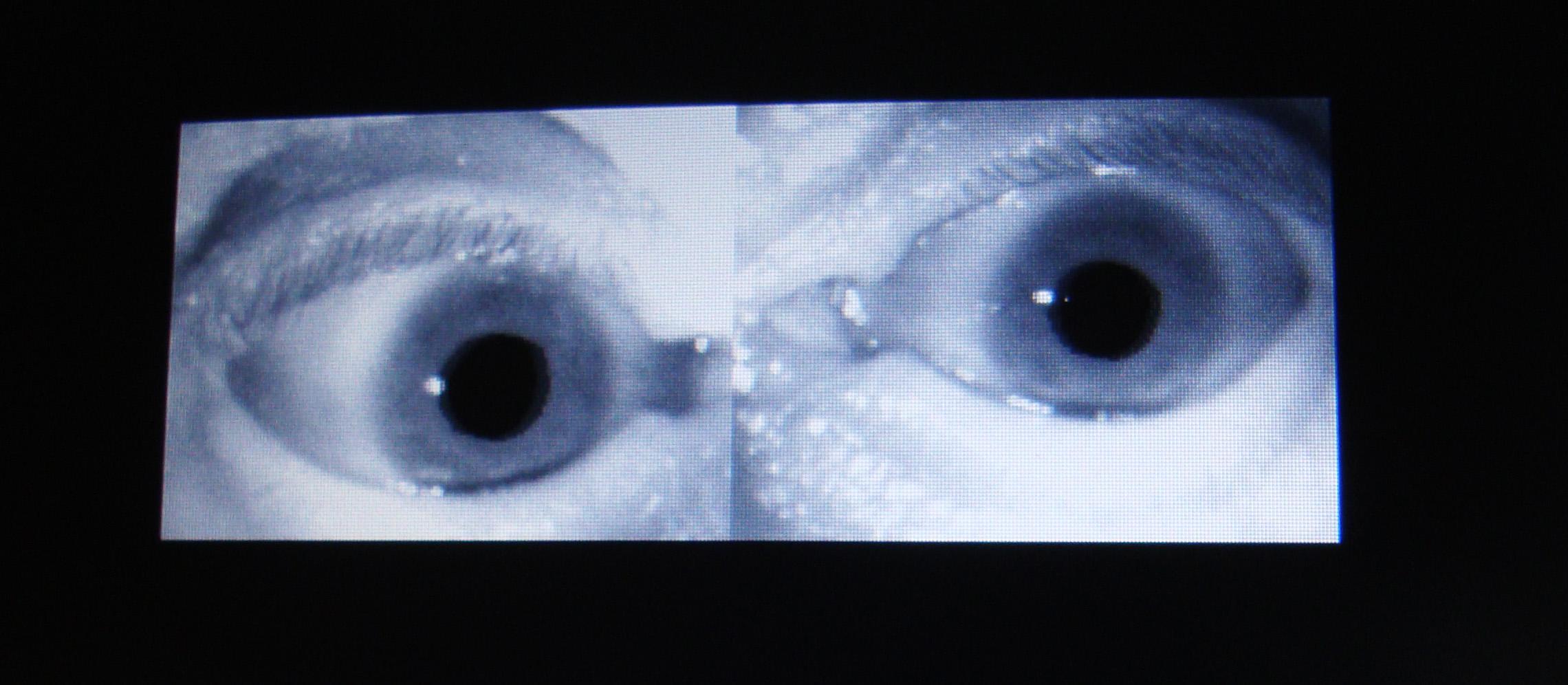 Imagen de Videonistagmografía