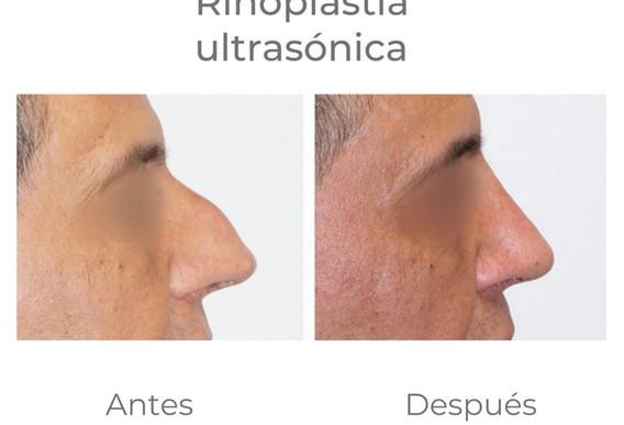 Resultados Rinoplastia ultrasónica
