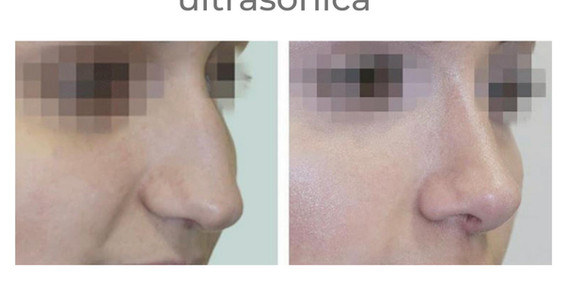 antes-despues-rinoplastia-barnamedik 5.j