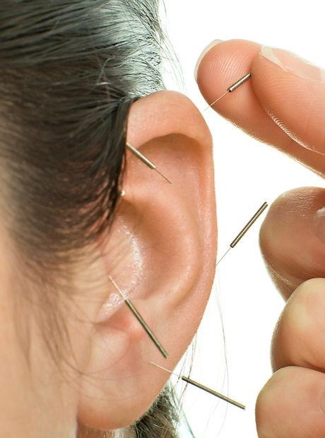 ear_acupuncture_edited.jpg