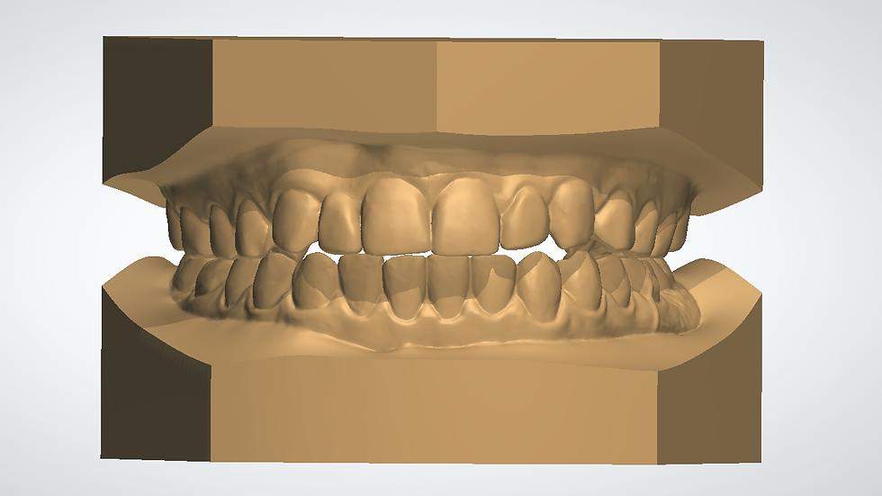 Pre Made Orthodontic Model Base - Upper & Lower