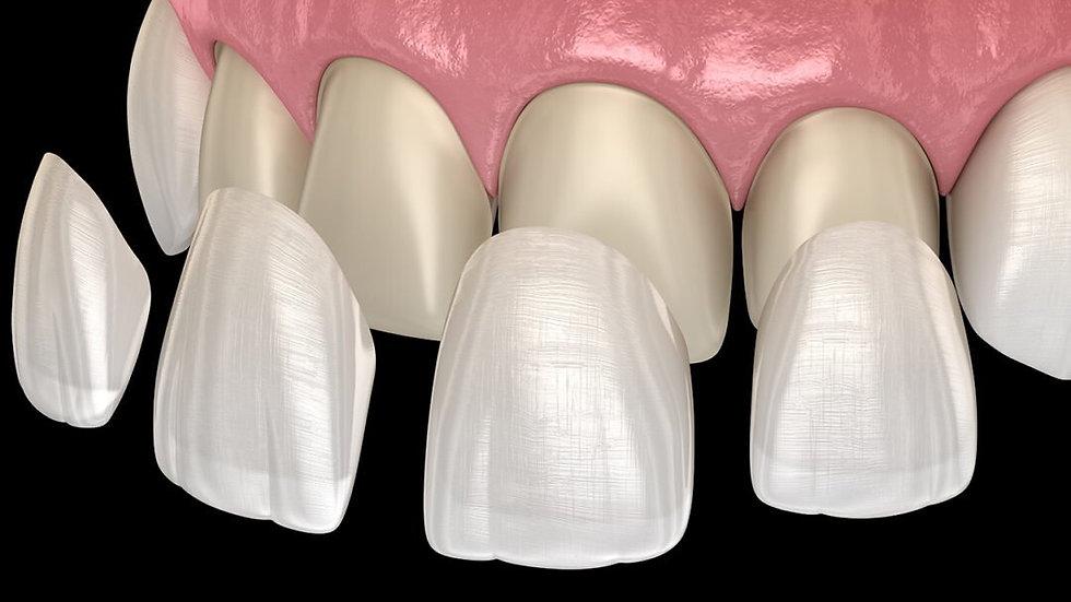 5 Practice Cases - Veneers, Inlays & Onlays.