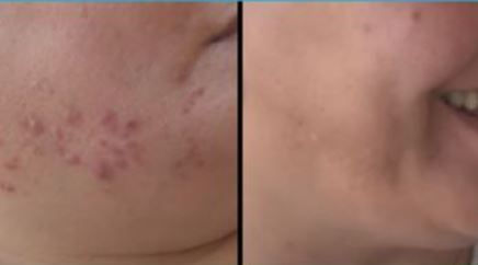 acne avant ares2.JPG