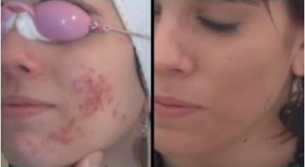 acne avant ares.JPG