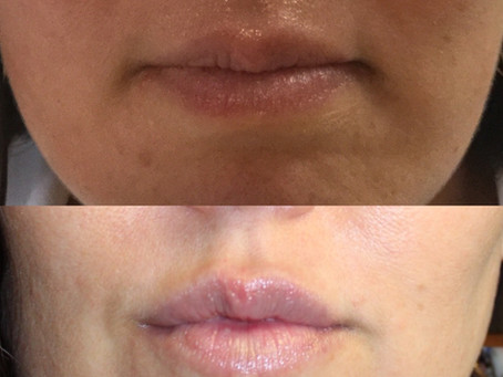 7 Things Your Nurse Injector Wants You To Know Before Getting Lip Filler