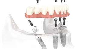 Implantes Dentales de Carga Inmediata en Bogotá