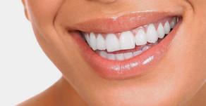 ¿Qué es un Diseño de Sonrisa?