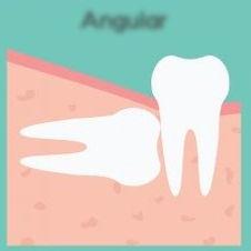 carlos garces dds odontologo en bogota, implantes dentales, cirugia extraccion de cordales