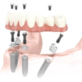 Implantes Dentales de Carga Inmediata, C