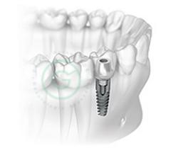 carlos garces dds odontologo en bogota, implantes dentales
