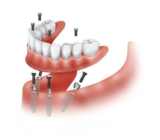 prótesis dentales implantes odontologo b
