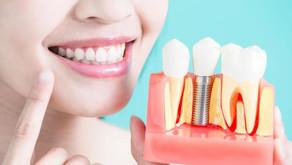 Cuidados después de una cirugía de Implantes Dentales
