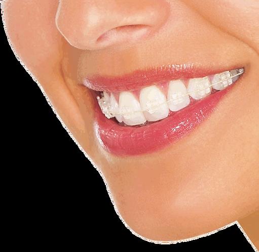 ortodoncia avanzada bogota odontologo ca