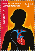 media-medical-innovations-cardiac-pacing