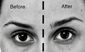 Eyebrow Lift Photo.jpg