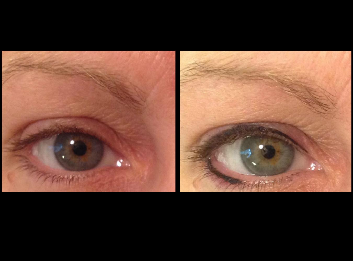 Maquillage permanent - Eyeliner