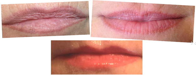 Maquillge permanent - Lèvres
