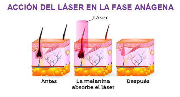 La depilacion funciona laser como