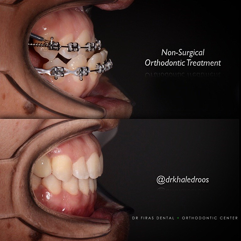 non surgical orthodontic treatment