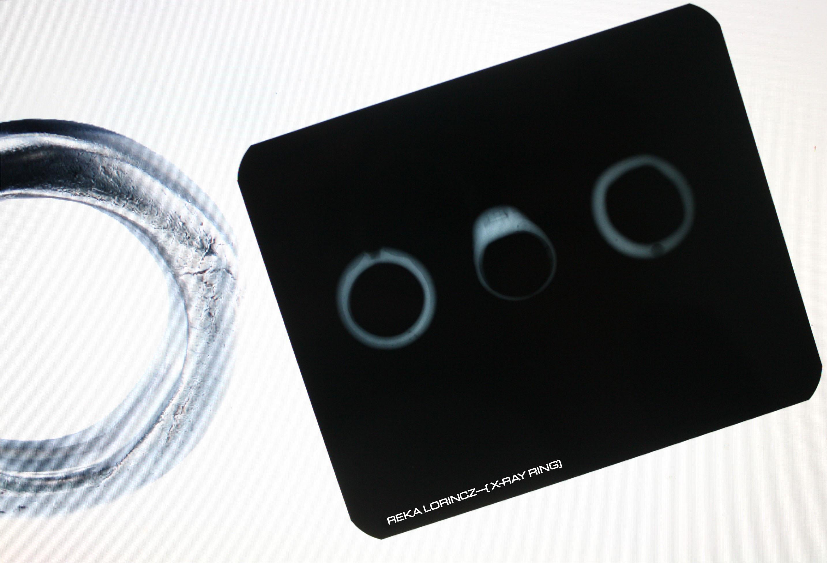 X-Ray Ring