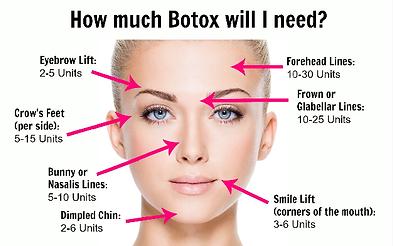 botox_pic.png