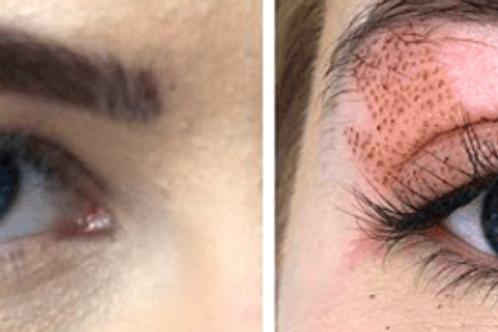 Fibroblast Your Eyelids for Lift & Tightening
