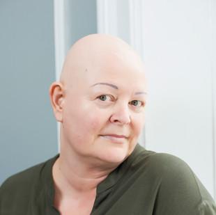 Madelene-alopecia-uden-paryk.jpg