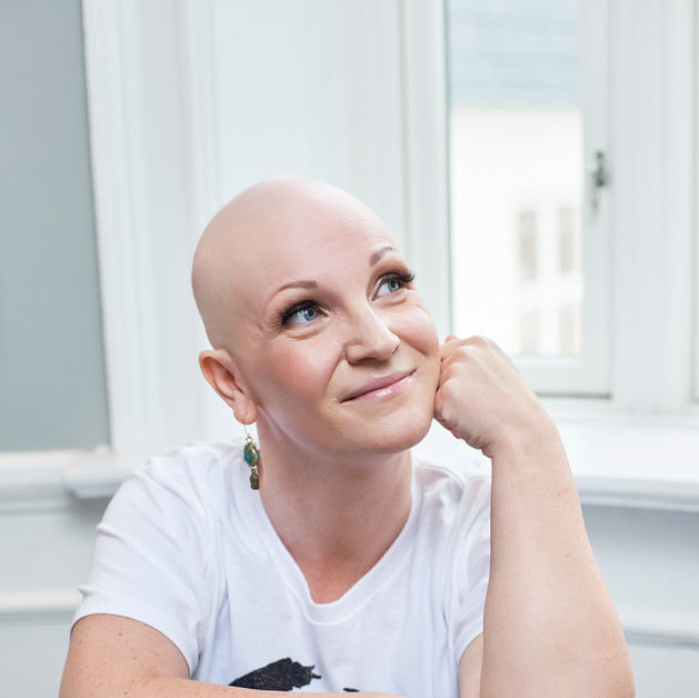 Maria har alopecia