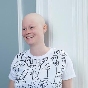 hårtab-Alopecia-paryk.jpg