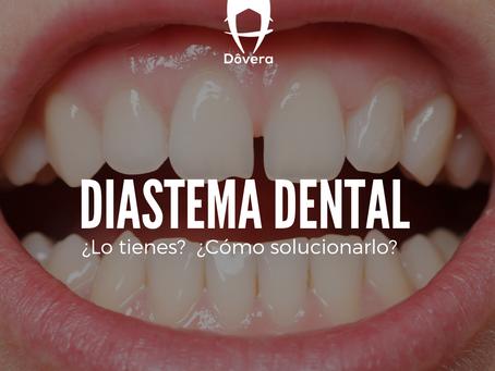 Diastema dental ¿Lo tienes?