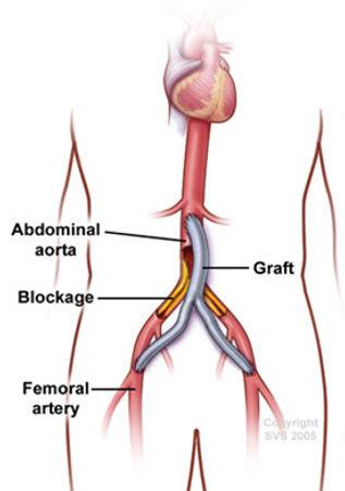 aortoiliac occlusive disease bypass.jpg