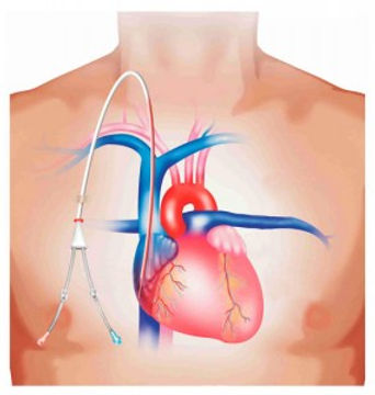 image_CatheterPlacement.jpg