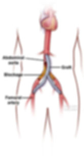 lower extrem4.jpg