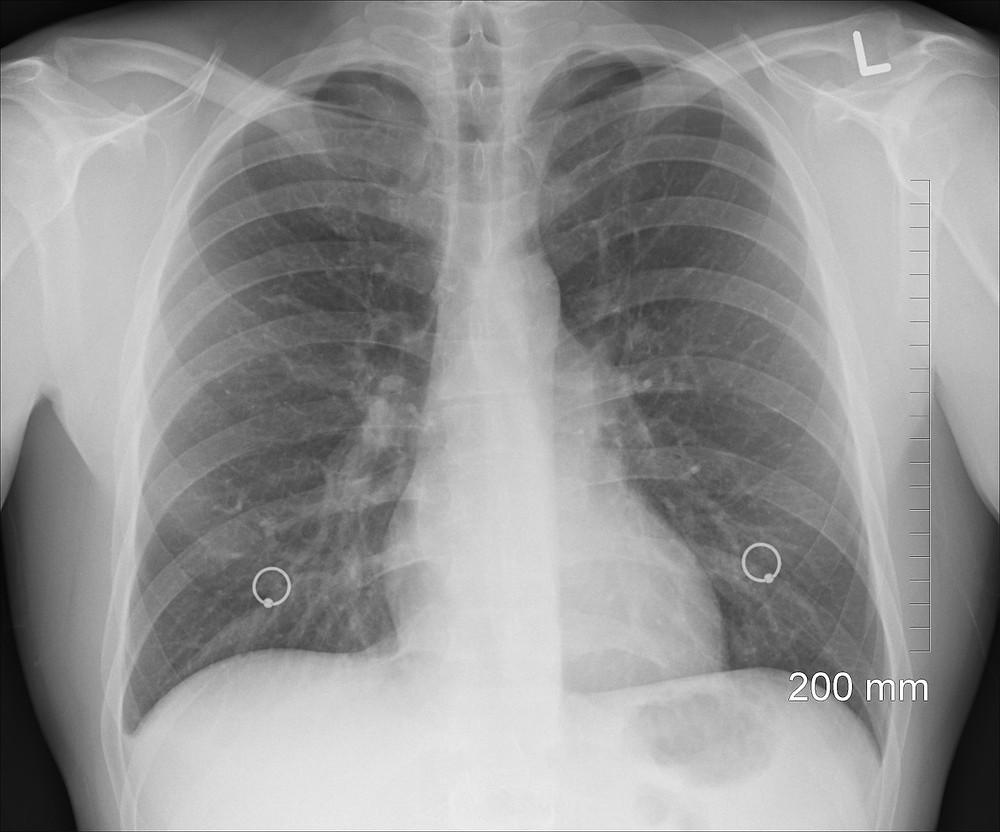 צילום רנטגן של בית החזה